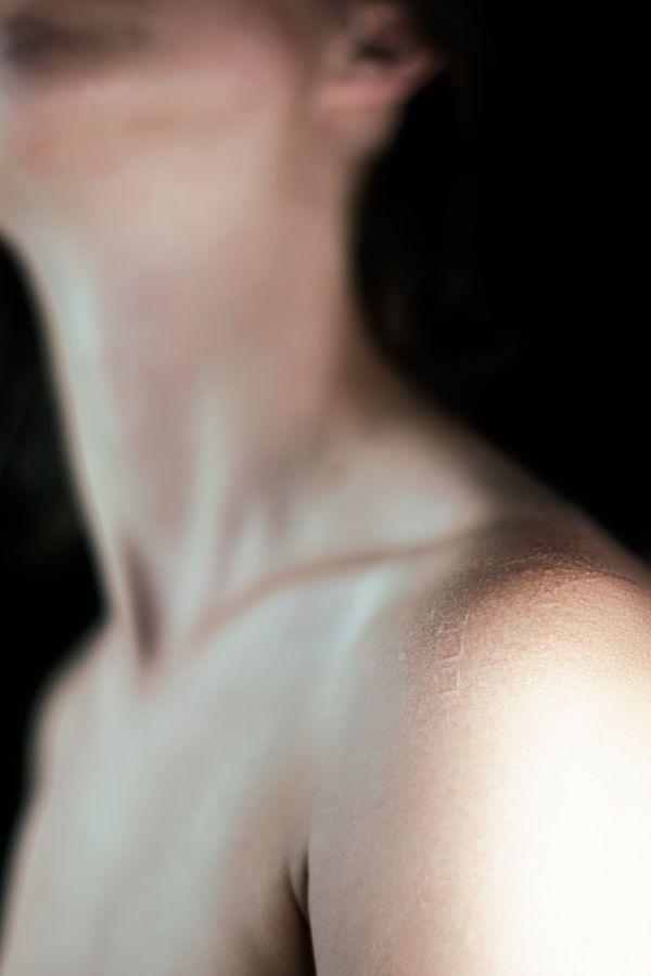 Louise s'est scarifié l'épaule et les cicatrices forment des motifs. Là, trois petits carrés apparaissent côte a côte, sur sa peau.
