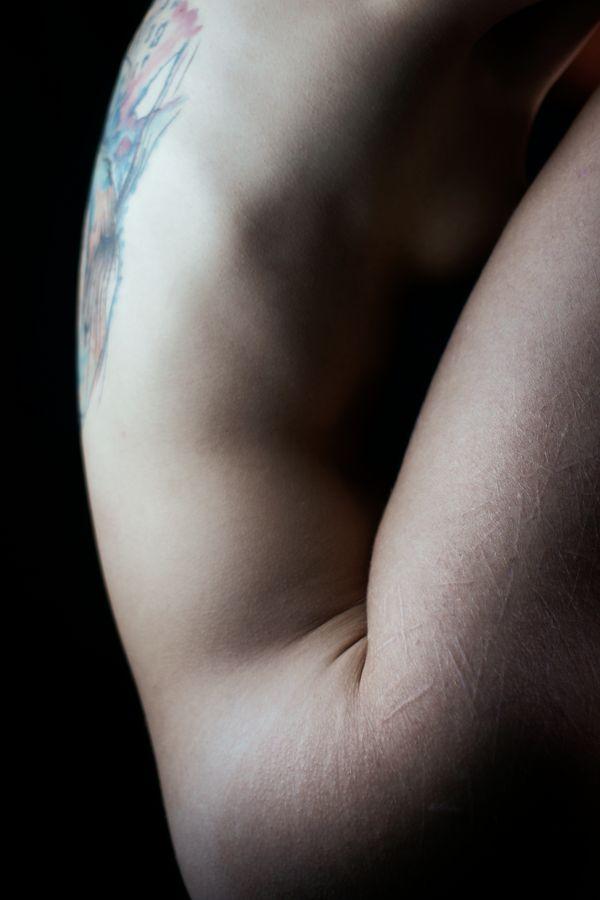 Louise a de nombreuse cicatrices sur la cuisse, mais elle a aussi un tatouage dans le dos. Et vous, quelles modifications corporelles avez-vous ?
